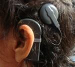 implante oreja